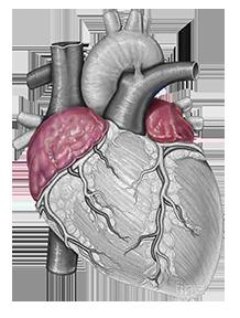 Trattamento chirurgico della fibrillazione atriale
