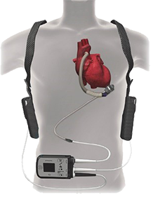 Trattamento chirurgico dello scompenso cardiaco
