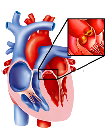 Trattamento chirurgico dell'endocardite