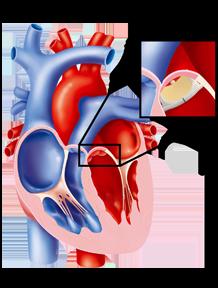 Valvola aortica: patologia e trattamento