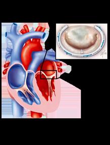 Valvola mitrale: patologia e trattamento
